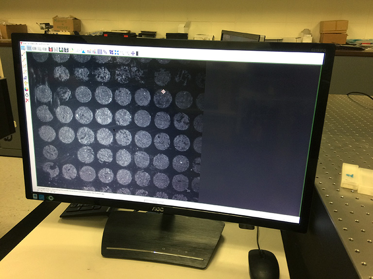 Computer images of lung cancer cells